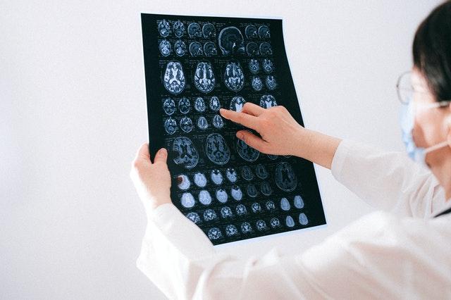 5 Best Neurologists in Winnipeg